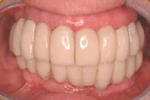 implant8