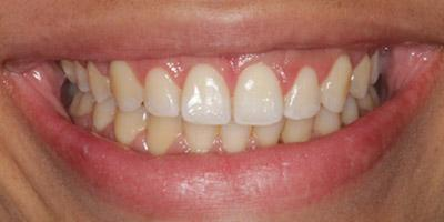 After Gingival Recontouring