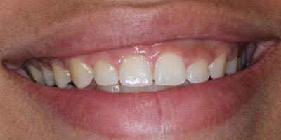 Before Gingival Recontouring