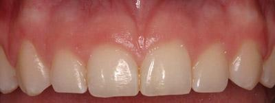 Before Results for Gingival Recontouring