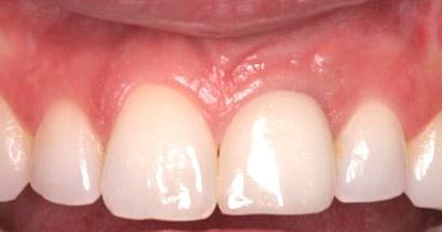 After Results for Rebuilding Lost Tissue Using Grafting