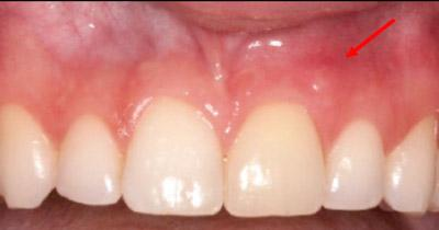 Before Results for Rebuilding Lost Tissue Using Grafting