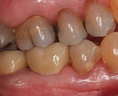 After Results for Immediate Dental Implants to Replace Back Teeth
