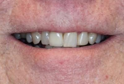 After Results for Immediate Dental Implants in the Cosmetic Zone