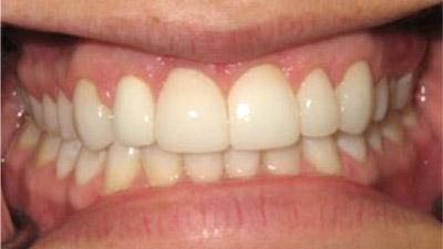 After Results for Rebuilding Your Smile with Collaborative Care