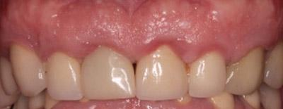 Before Results for Immediate Dental Implants in the Cosmetic Zone