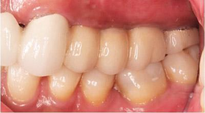 After Dental Implants to Replace Multiple Teeth