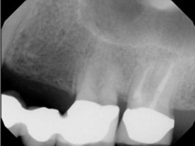 Before Results for Dental Implants to Replace Multiple Teeth