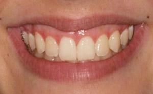 After Results for Gingival Recontouring