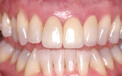 After Immediate Dental Implants in the Cosmetic Zone