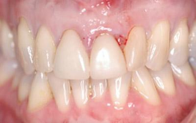 Before Immediate Dental Implants in the Cosmetic Zone