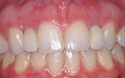After Immediate Dental Implant Provisionalization