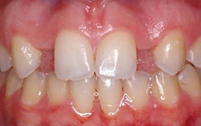 Before Immediate Dental Implant Provisionalization