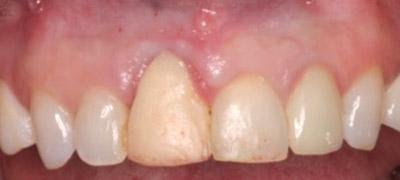 Before Results for Immediate Dental Implant Provisionalization