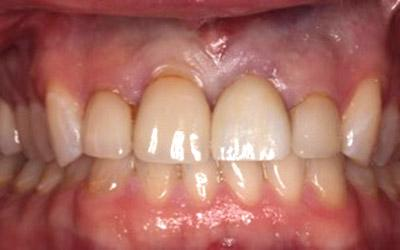 After Results for Immediate Dental Implant Provisionalization