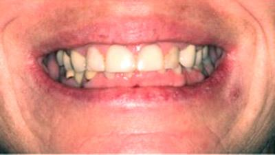 Before Results for Rebuilding Your Smile with Collaborative Care