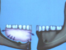 The implant retained denture