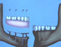A bar-retained overlay denture supported on four implants