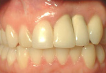 Results from Bone Graft