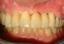 Fixed Temporary Restoration After Implant Placement