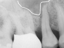 Pre-Op x-rays Reveal Void of Bone Above Tooth to be Extracted
